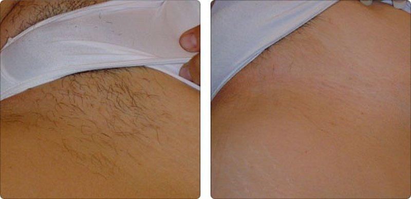 Эпиляция бикини: фото до и после.