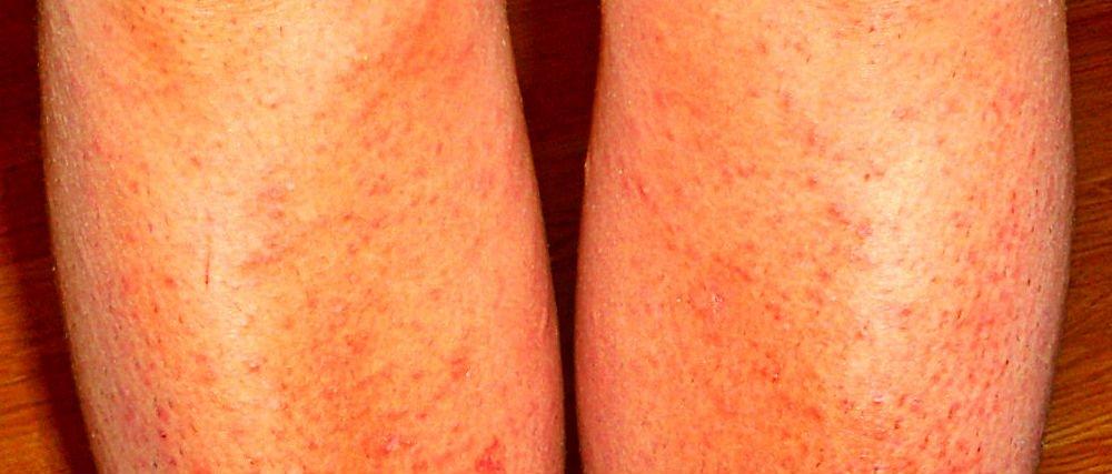 Снять раздражение после бритья интимной зоны в домашних условиях