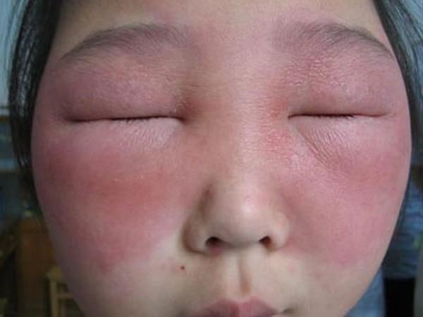 5_allergia