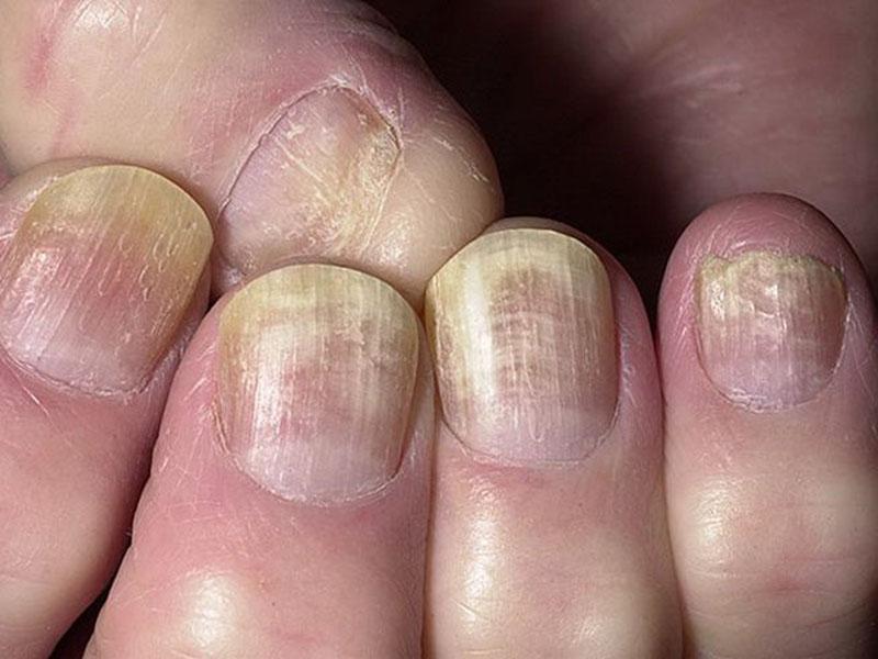 Как проверить грибок на ногтях марганцовкой