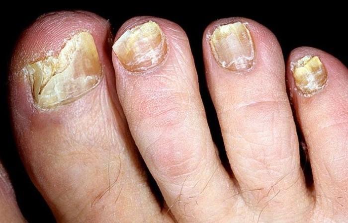 Грибок в ногтях на руках народными средствами