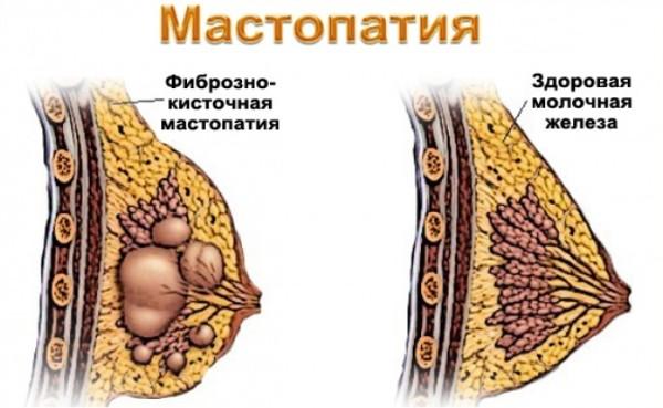 Фиброзно-кистозная мастопатия (ФКМ) молочной железы   Лечение