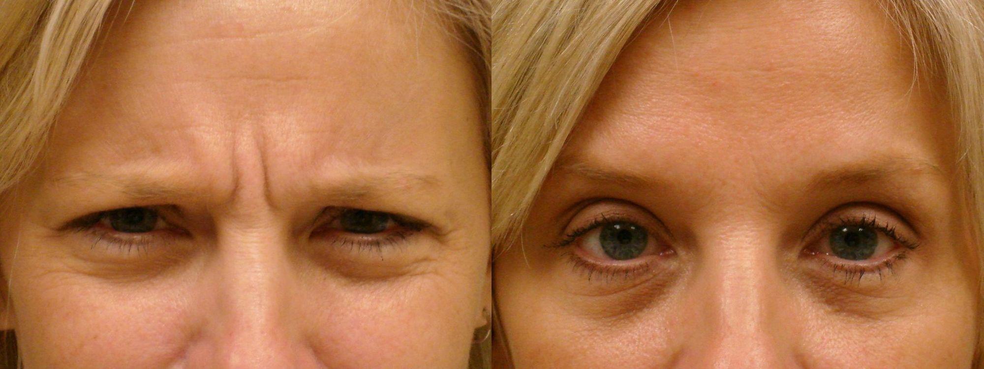 Морщины между бровью и глазом