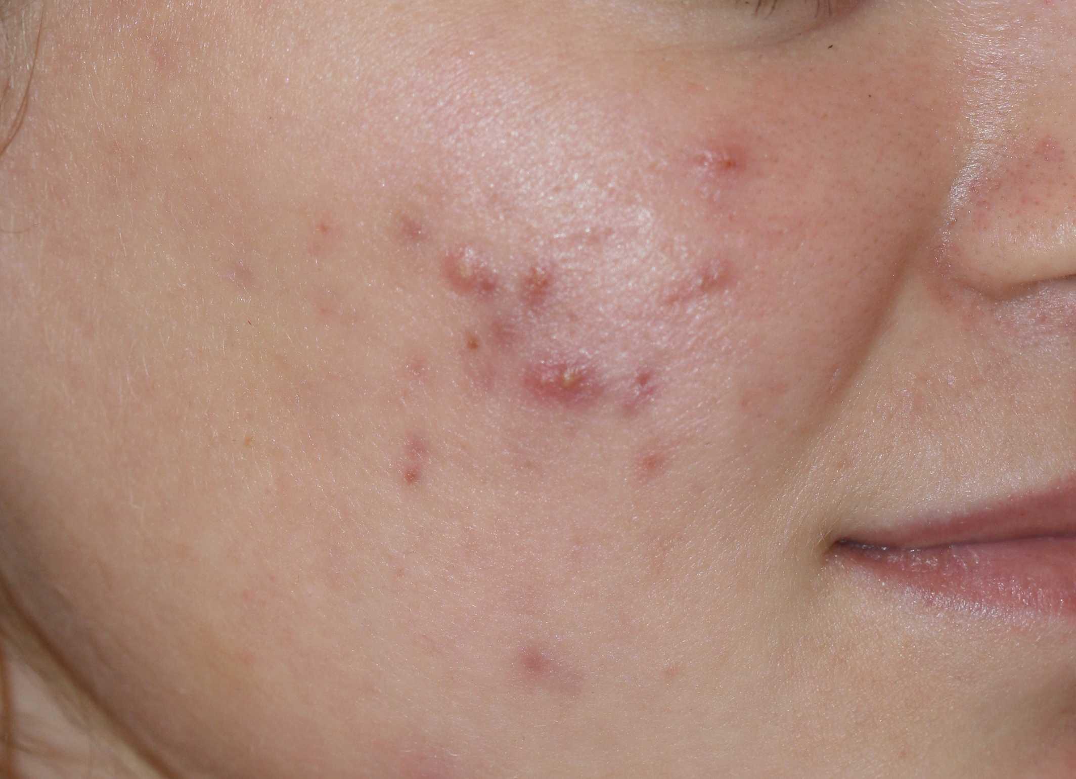 лечение гастроинтестинальной аллергии