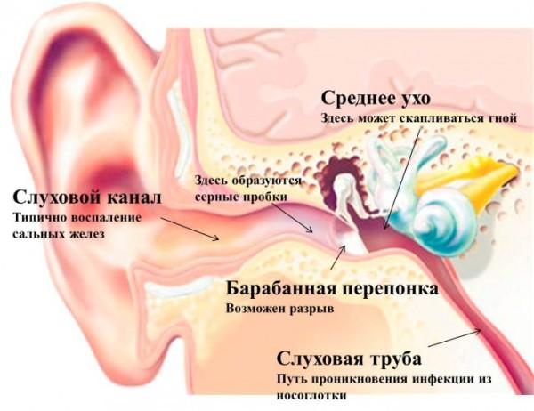 ushnaya-probka-700x539