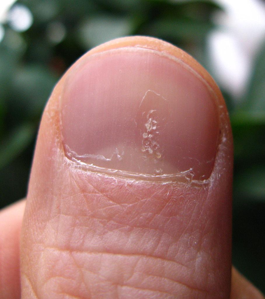 Ногти как наперсток что это