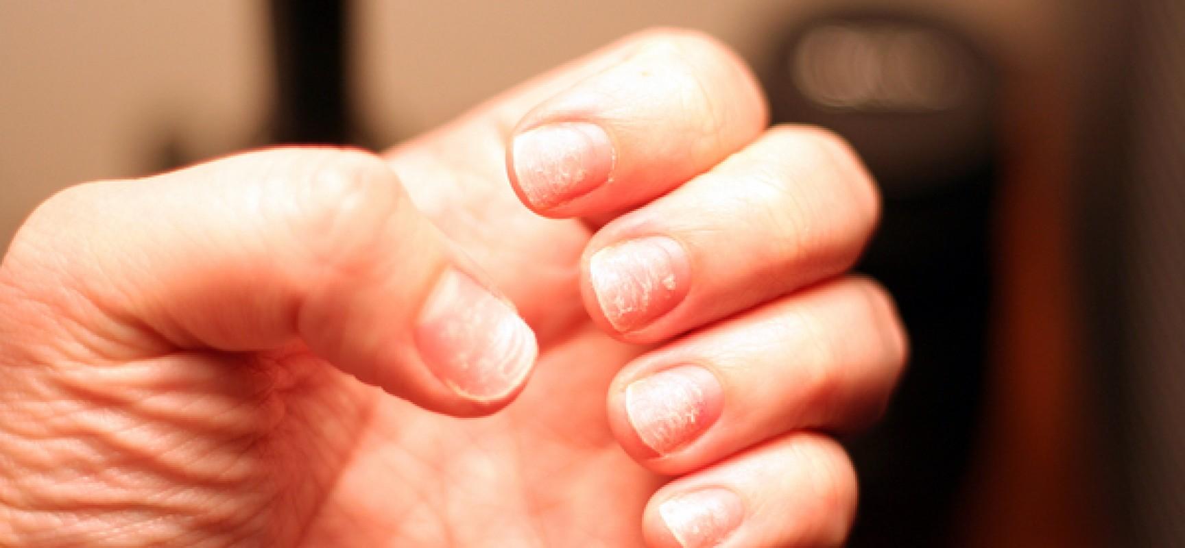 Хрупкие, ломкие, слоящиеся ногти – все это косметические проблемы.