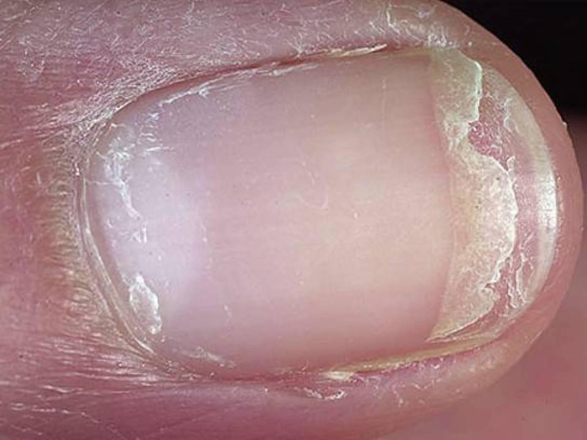 От чего слоятся ногти лечение в домашних условиях