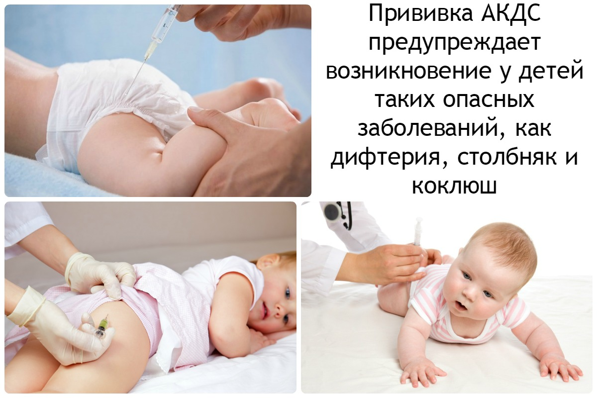 Акдс что делать после прививки