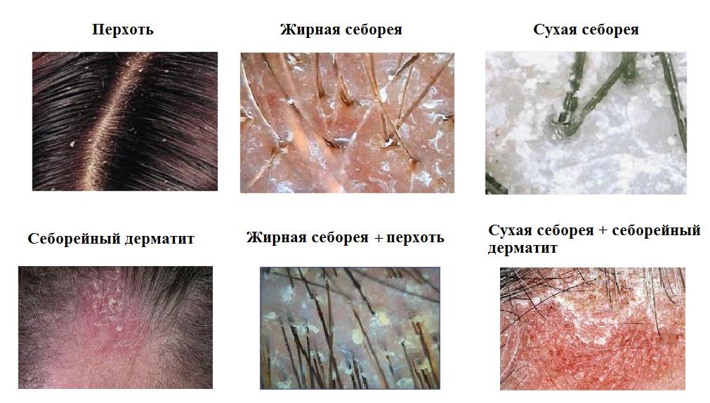 Народные средства при атопическом дерматите у детей