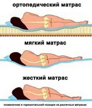 Ортопедические матрасы при сколиозе 2 степени