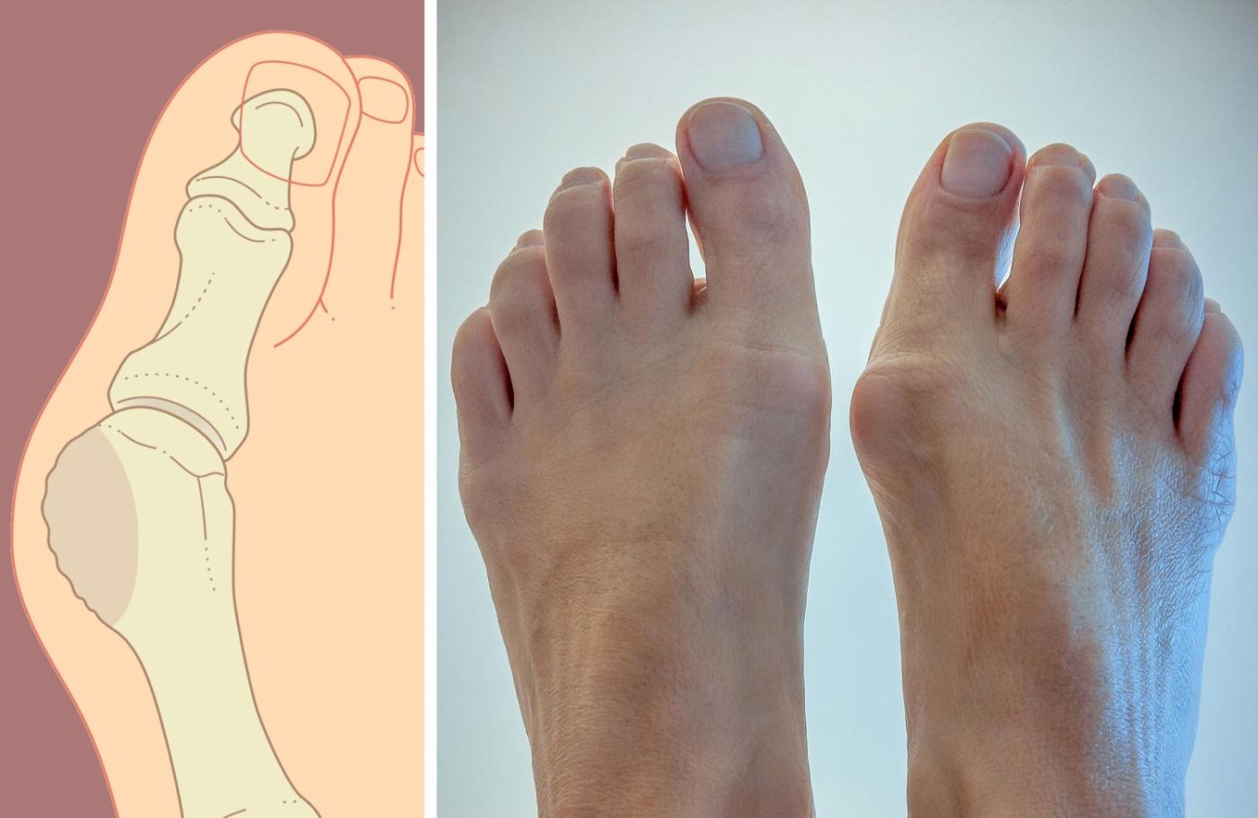Как убрать шишки (косточки) на ногах? | форум Woman.ru