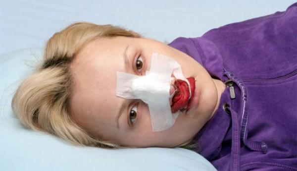 когда ушиб носа