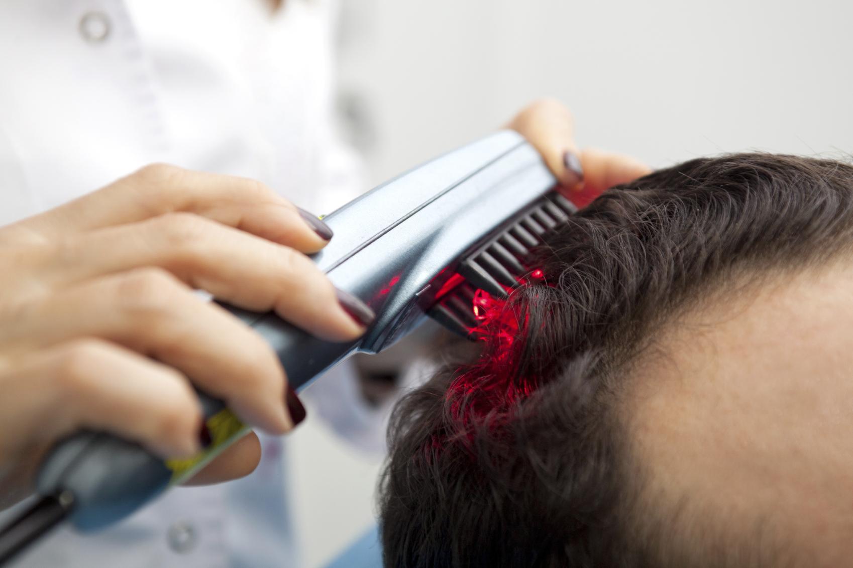 Как лечить выпадение волос у женщин в домашних условиях