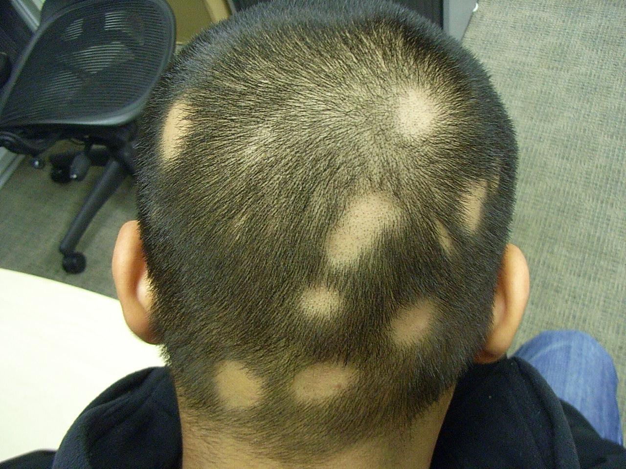 Волосы на лице растут частями