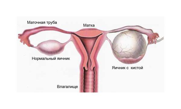 Как лечить кисту в яичнике при беременности