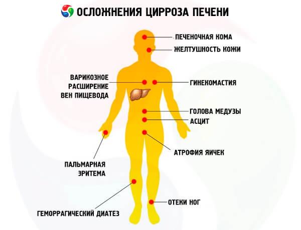 После оргазма болит низ живота и задний проход