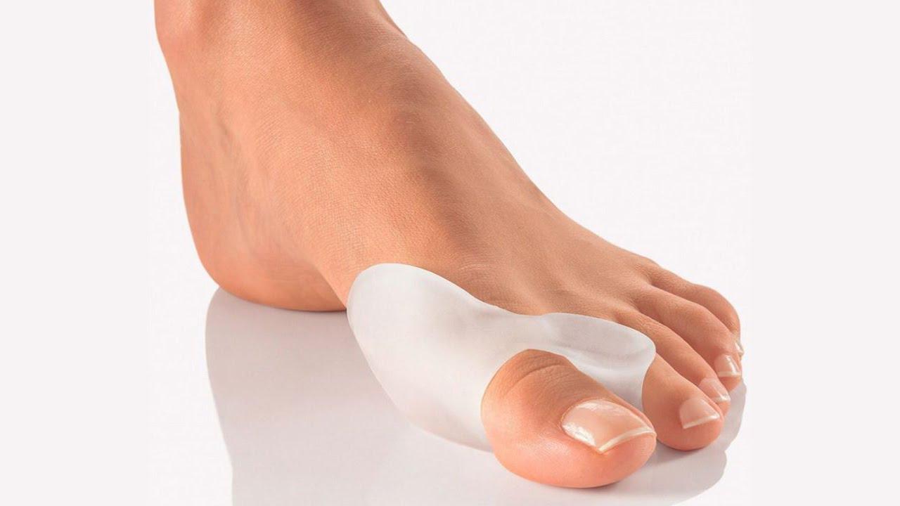 Косточка на ноге большого пальца сверху - причины и лечение