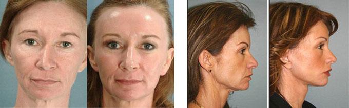 Фотоомоложение отзывы людей совет дерматолога от акне лечение
