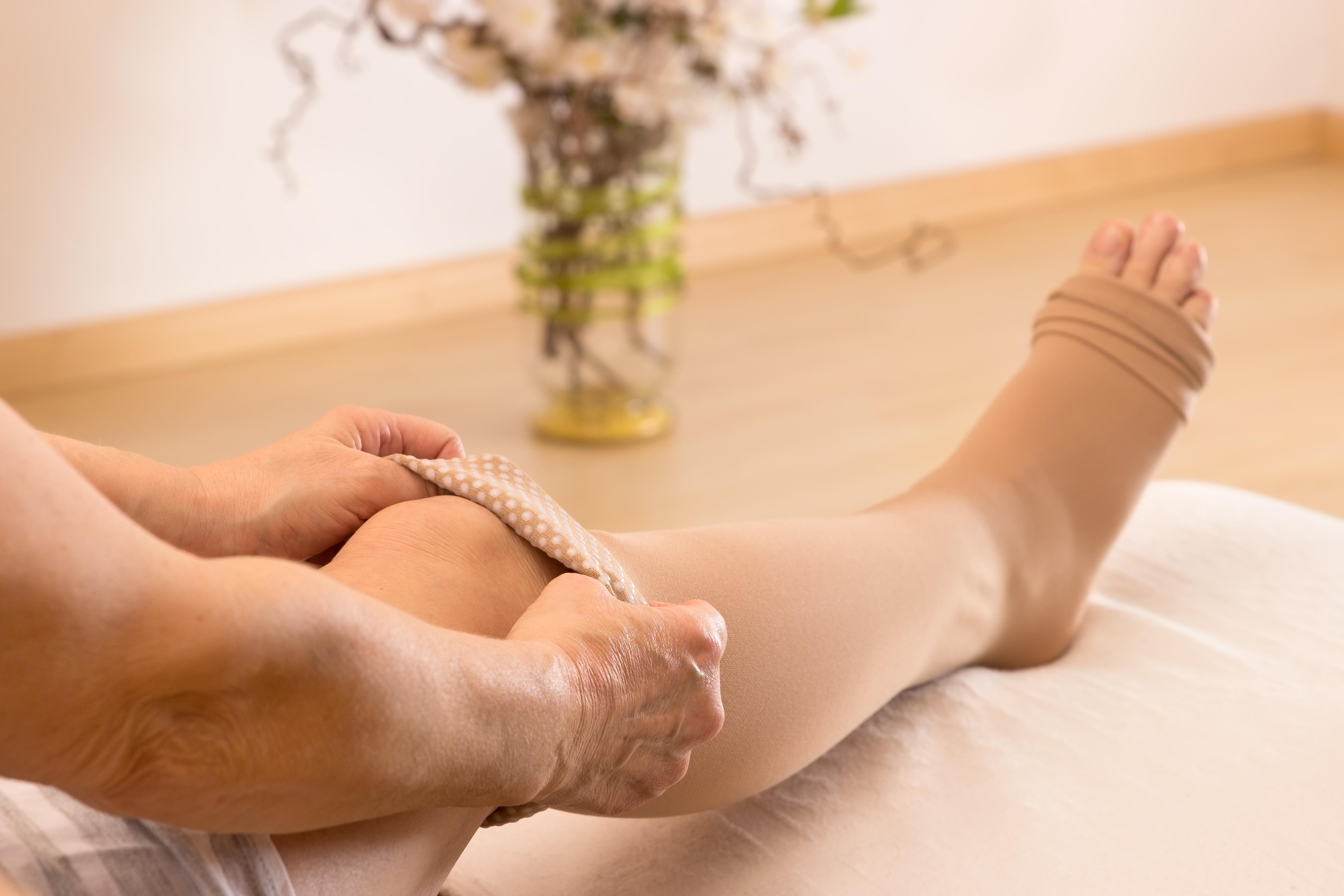 Варикозное расширение ног лечение в домашних условиях