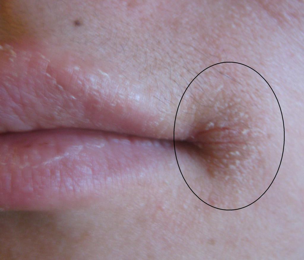 Почему трескаются губы. Что приводит к появлению трещин и заед на губах. Основные причины появления трещин и заед на губах. Как