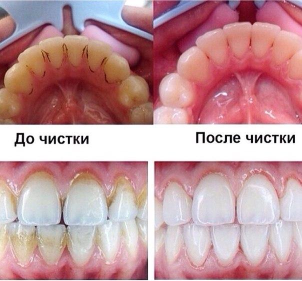 Очистить зубы от черного налета в домашних условиях