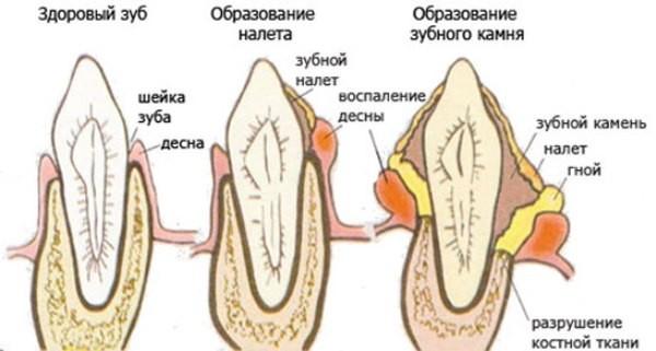 Chernyi-nalet-na-zubakh-u-rebenka-lechenie-min