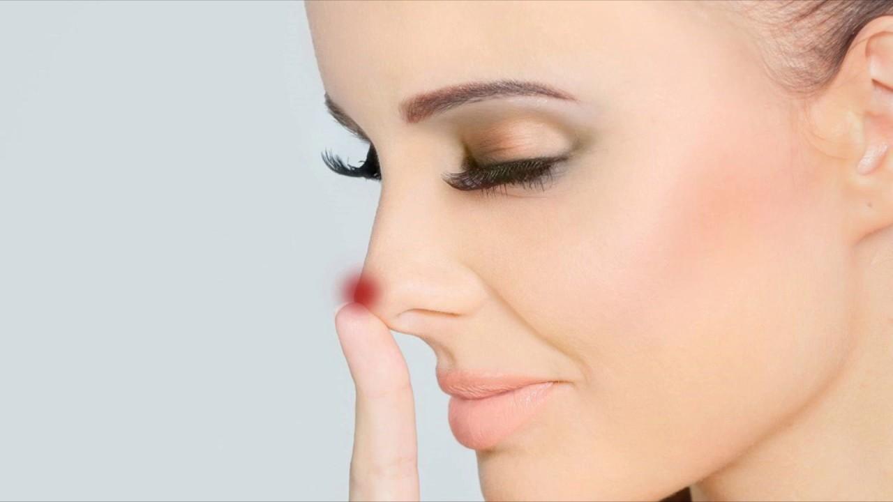 Нос течет после ринопластики