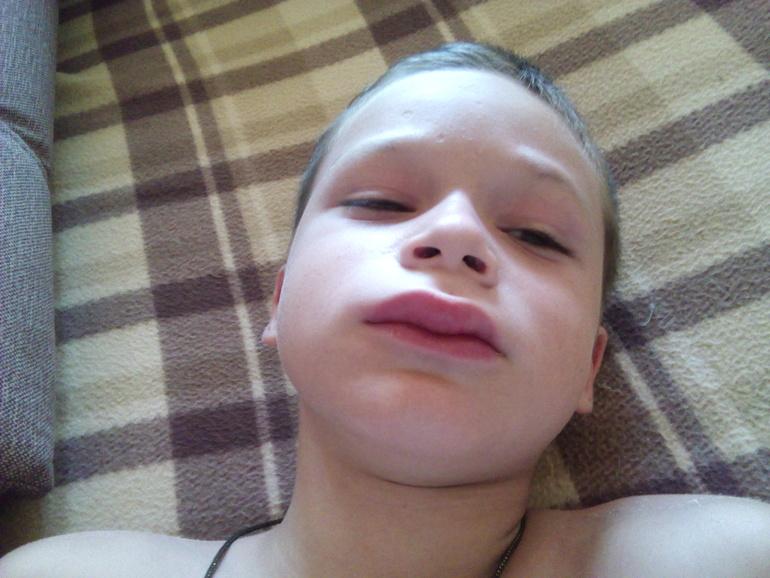 Снимок аденоидов у ребенка фото