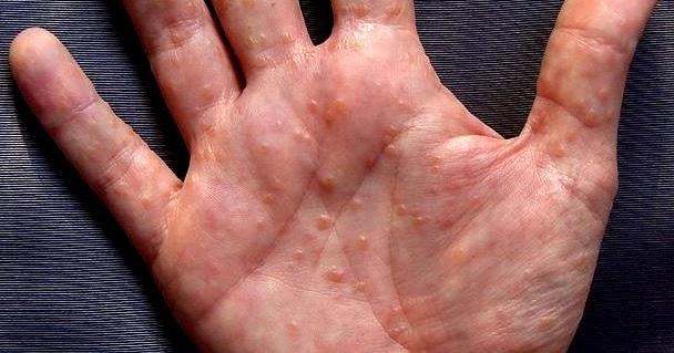 аллергия на ладошках