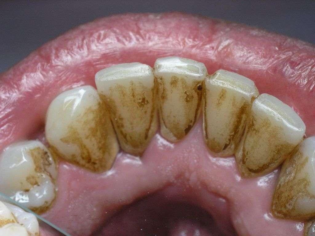 Зубного камня в домашних условиях