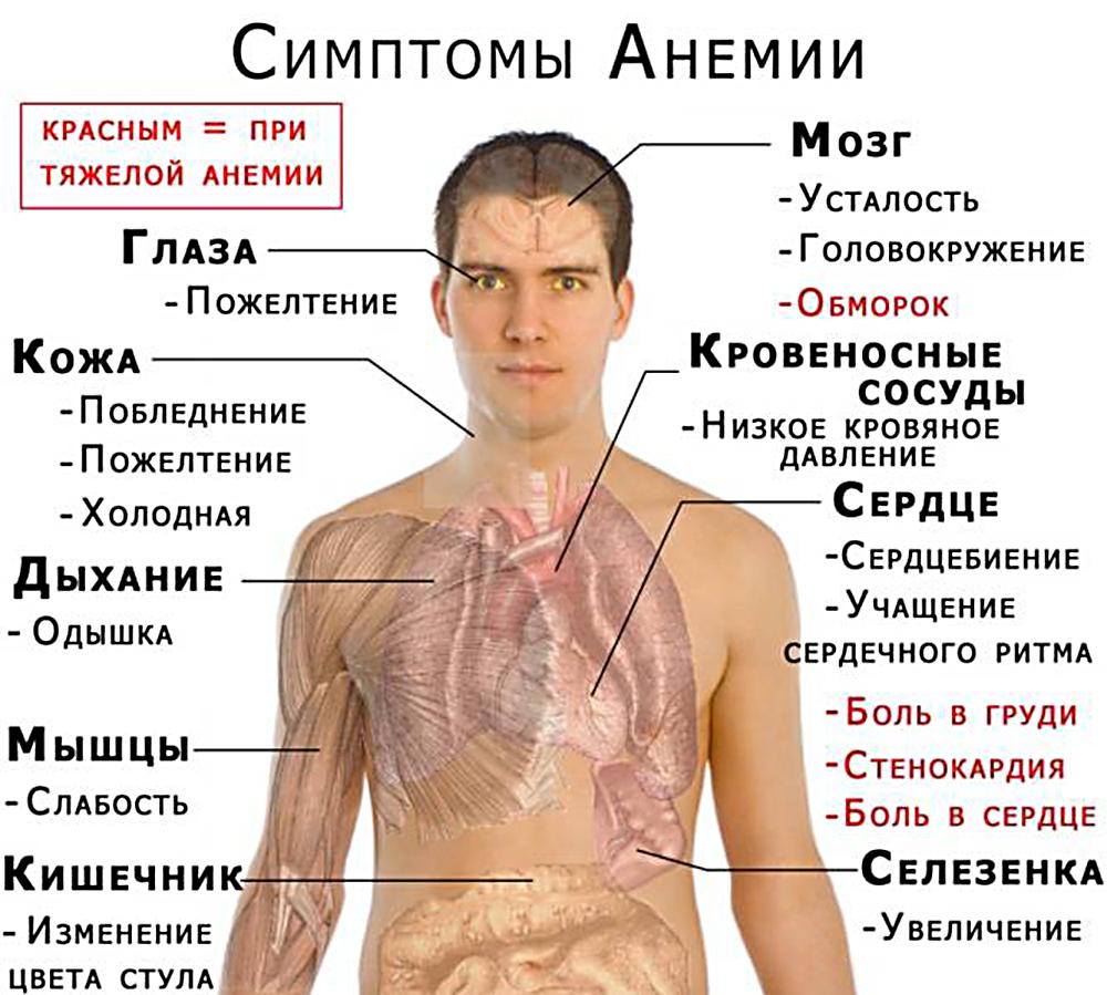 Симптомы низкого гемоглобина. Как проявляется низкий гемоглобин. В чем могут быть причины низкого гемоглобина и какие у недуга с